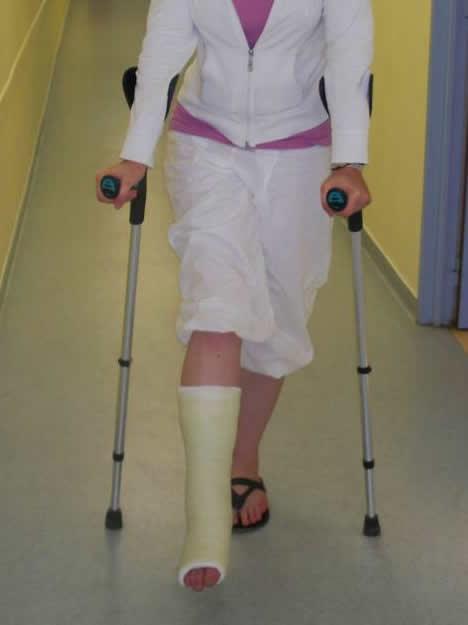 Arthrod se centre orthop dique pasteur lanroze - Comment avoir un platre ...