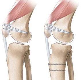 Luxation rotule - Centre Orthopédique Pasteur Lanroze