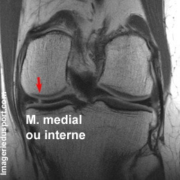 ménisque genou fissure