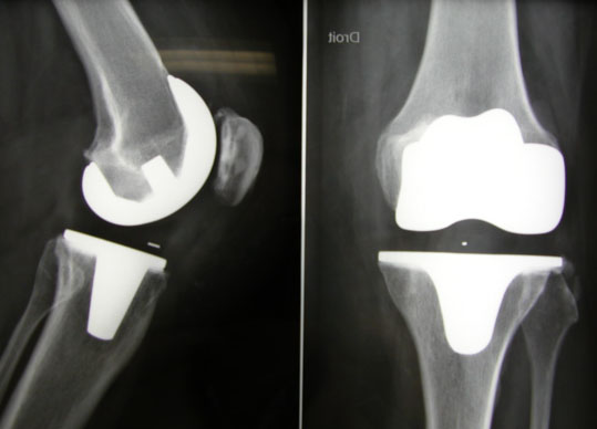 Эндопротез коленного сустава balansys mathys 3